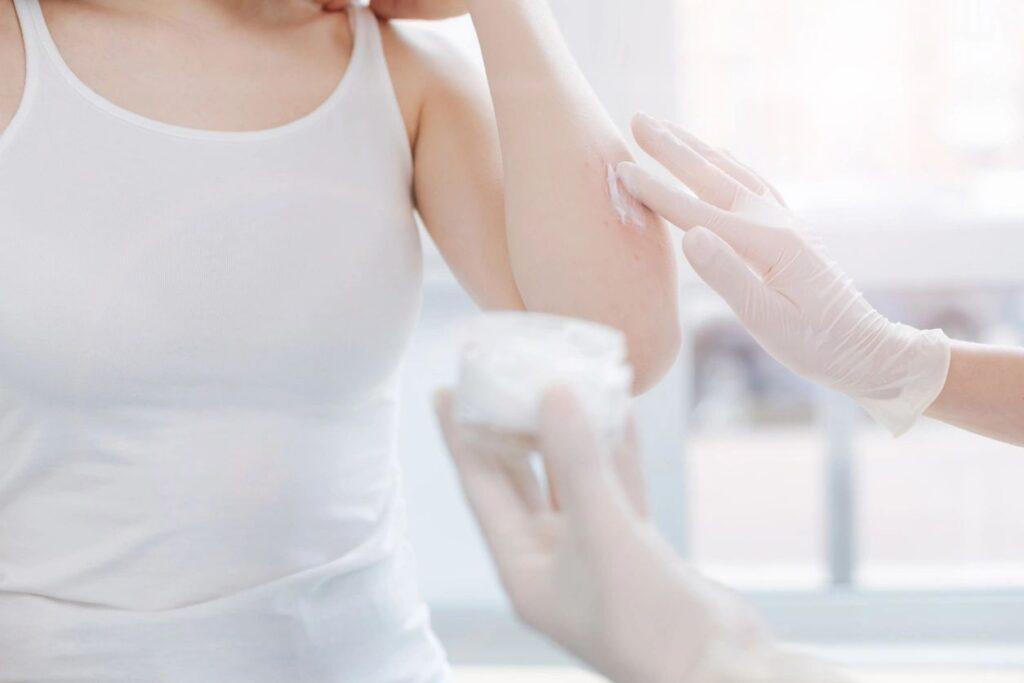 Eczema, skin, itch, redness, inflammation, natural treatment, edina, woodbury, minnesota