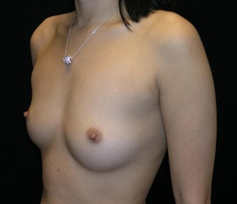 breast augmentation denver