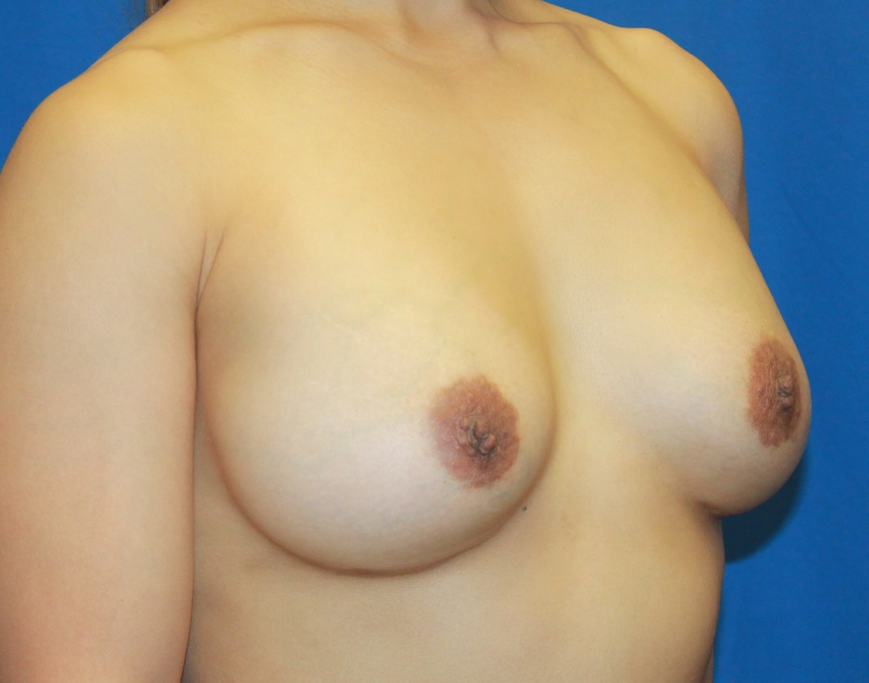 denver breast implants
