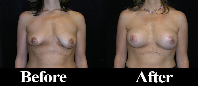 breast lift denver