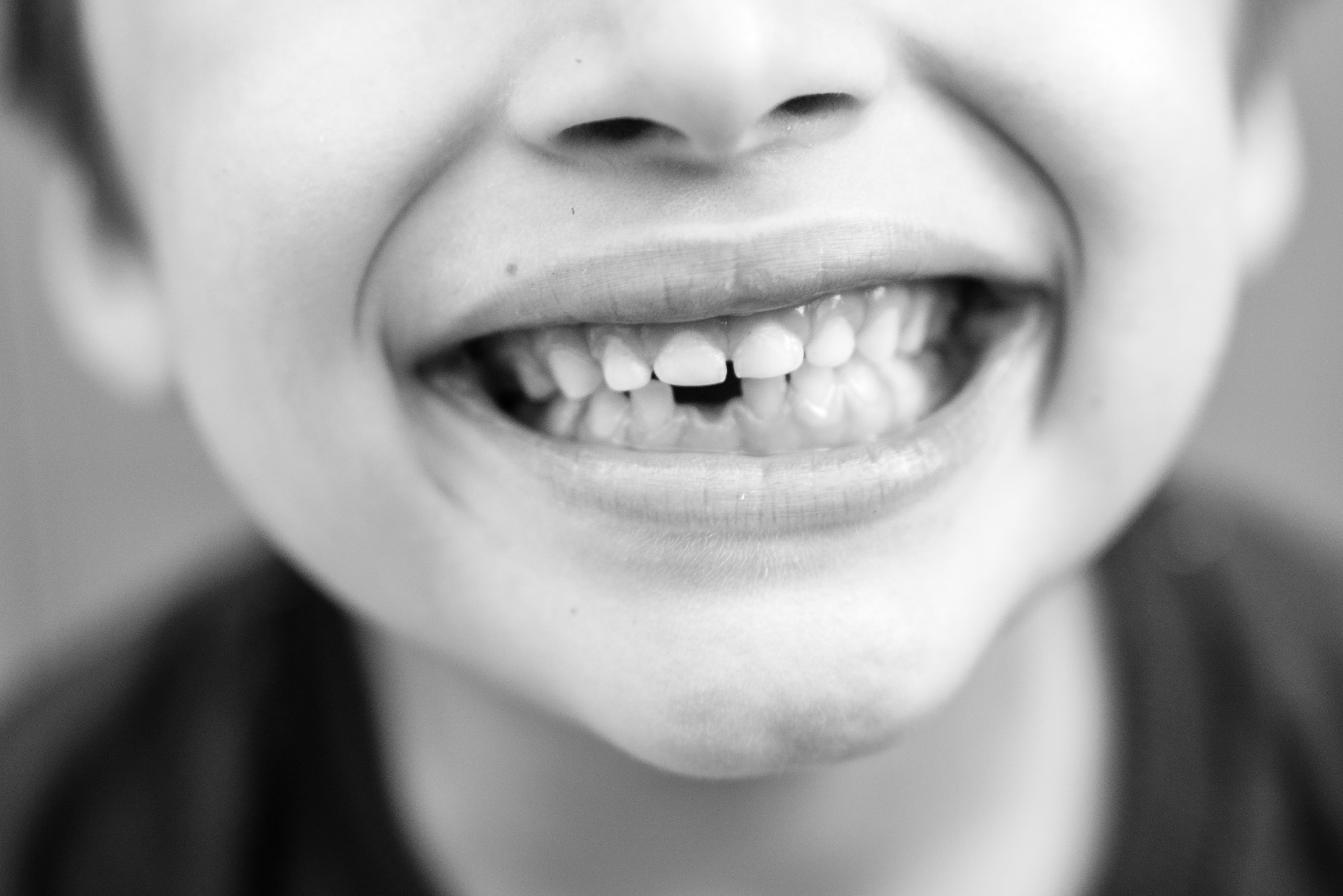 losing teeth dental treatment
