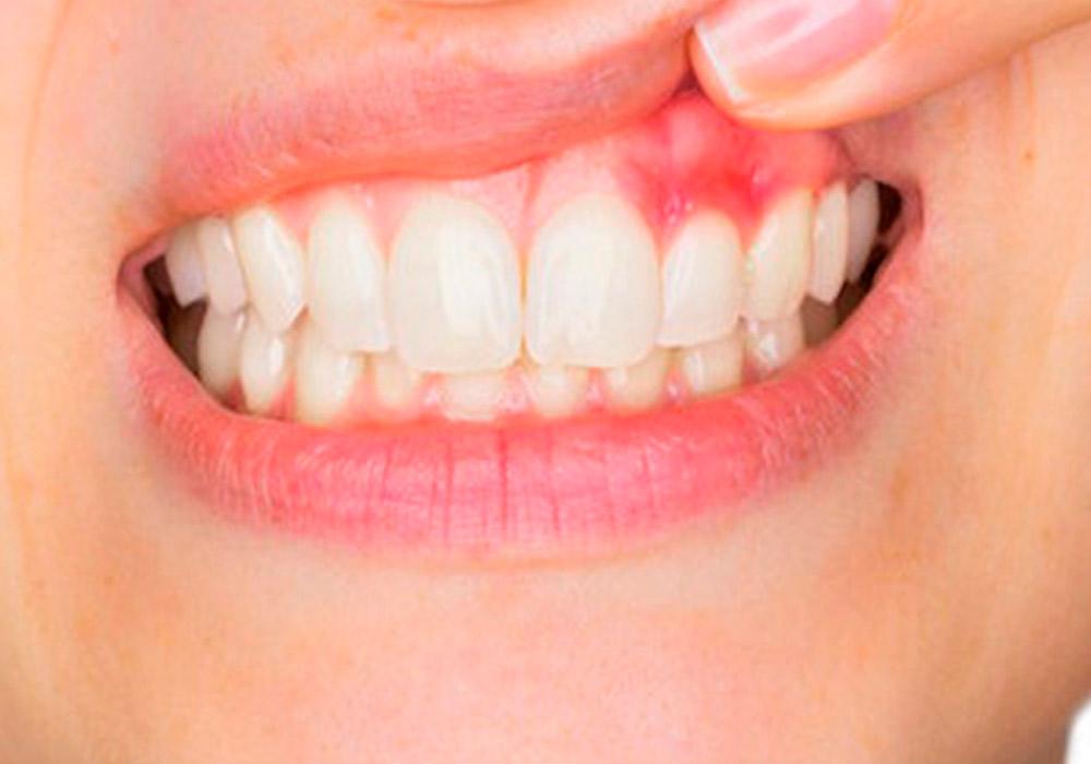 Gum Disease Ghosts - Epic Dentistry for Kids