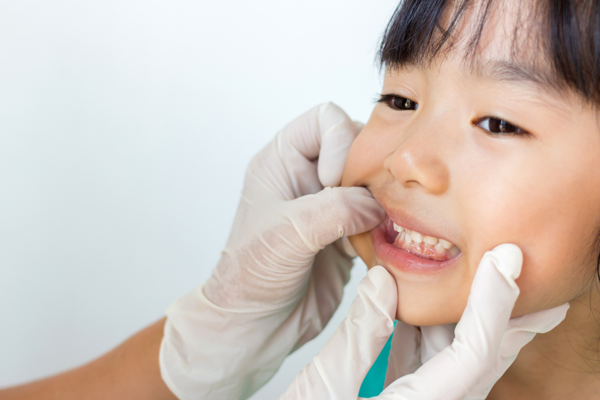 The Importance of Encouraging Positive Dental Experiences Early