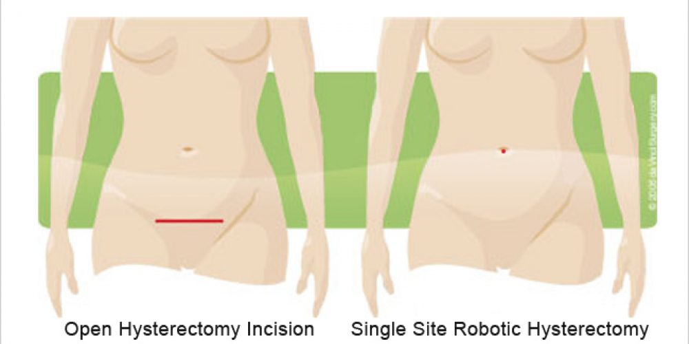 Single Site Robotic Hysterectomy