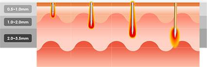 Secret RF Microneedling - adjustable needle depths