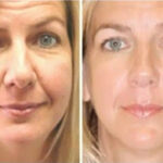 Before and after microcurrent facial treatments.