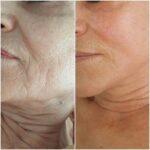 Dermapen micro-needling: wrinkle reduction.