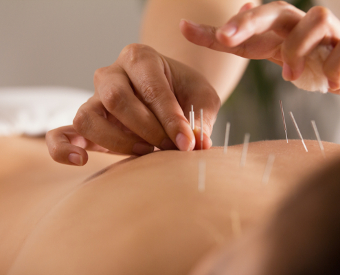 Acupuncture for healing and prevention