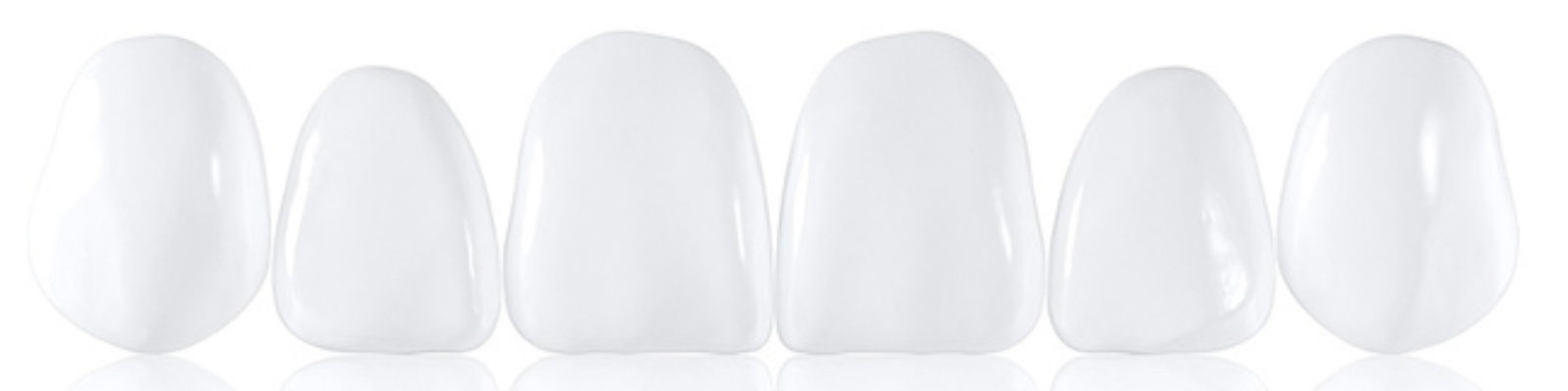 7 Common Problems in Cosmetic Dentistry (Porcelain Veneers)