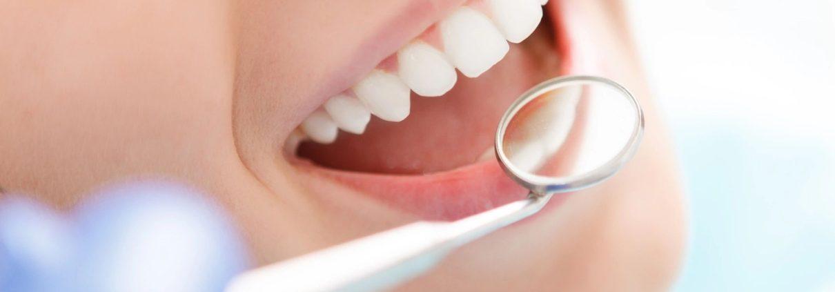 Dental Exam Smiling