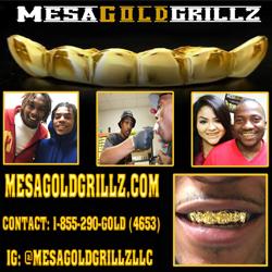 Mesa Gold Grillz