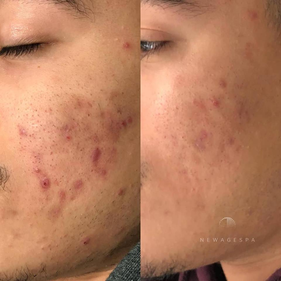 Microneedling for men with acne