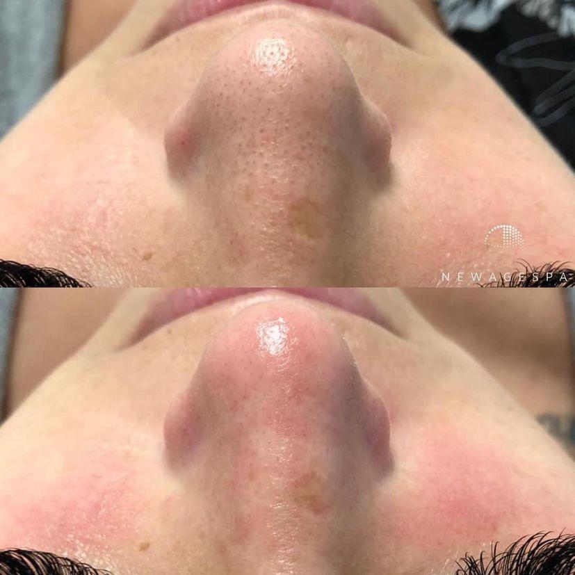 Extraction du visage à montrea photo du nez du client