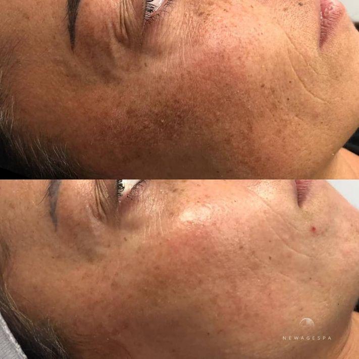 élimination de l'hyperpigmentation microneedling élimination des taches brunes
