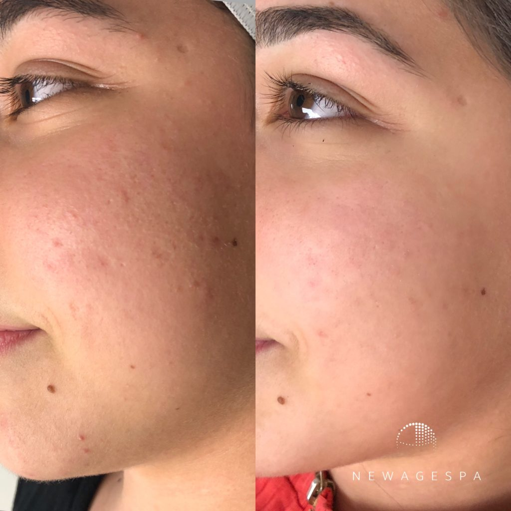microneedling in Montreal and laval