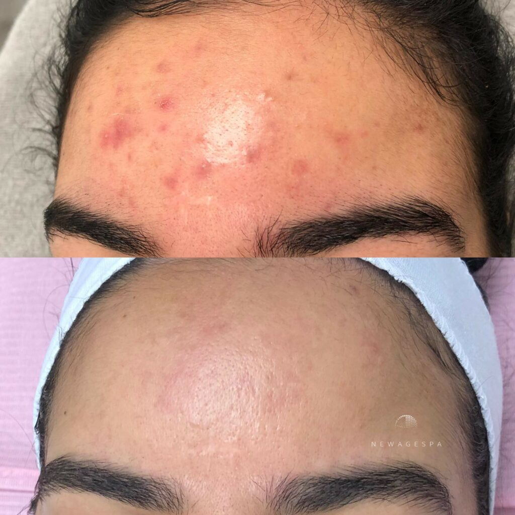 microneedling on forehead for red pimples removal