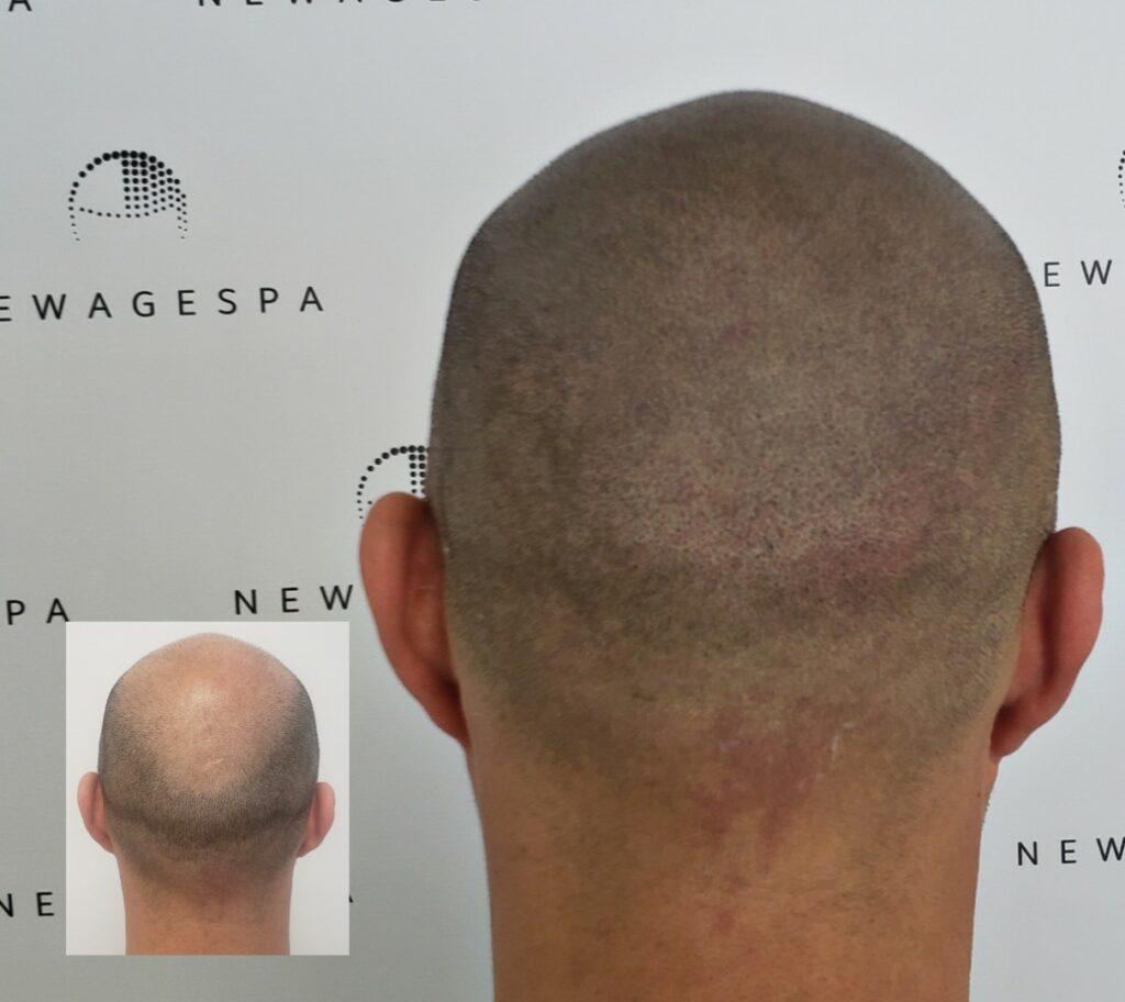 Scalp micropigmentation capillaire Montreal - Laval