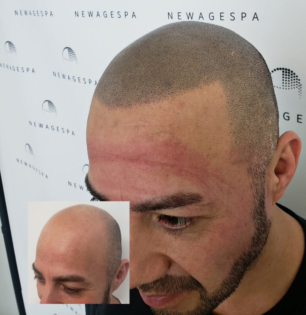 Hair pigmentation Scalp micro in Montreal, Laval and South west