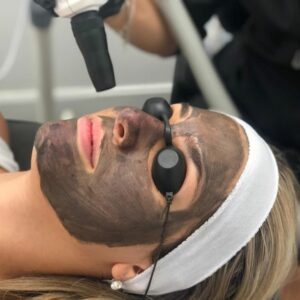 laser facial in montreal skin treatment for a client