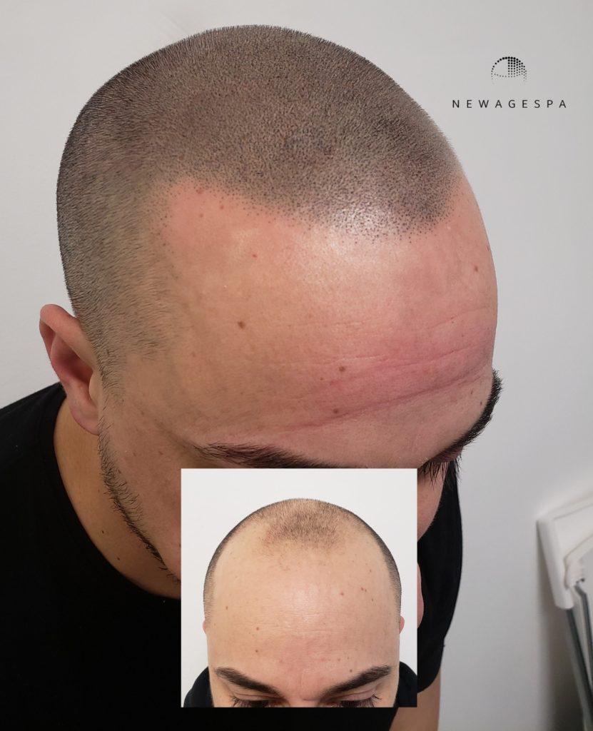 Hair scalp micropigmentation capillaire