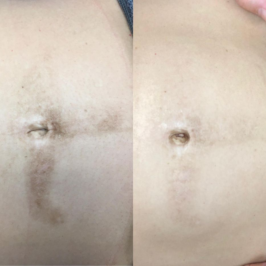 scar in the skin treated with microneedling