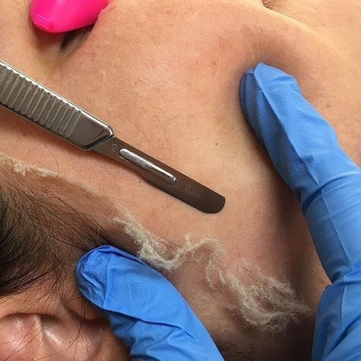 dermaplaning close up and removal of dead skin cells and peach fuzz