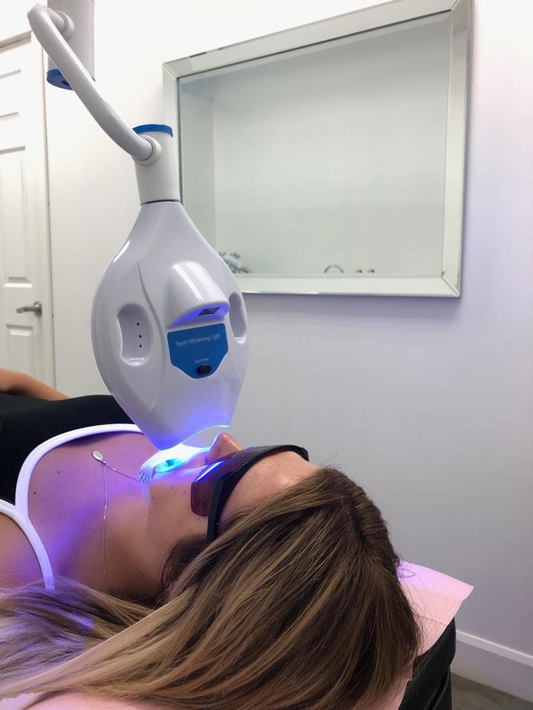 teeth whitening in action during an appointment in montreal