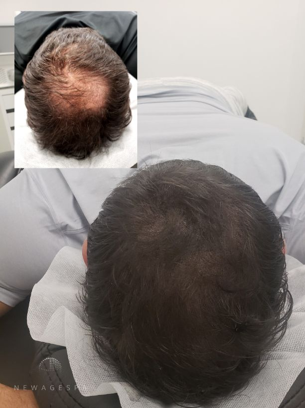hair tattoo results on a client with a thinning crow hair