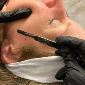 dermplaning facial close up in montreal spa by student training