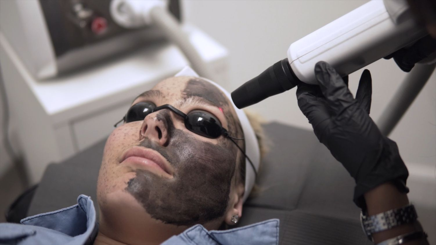 laser facial in montreal and laval process of carbon laser peel