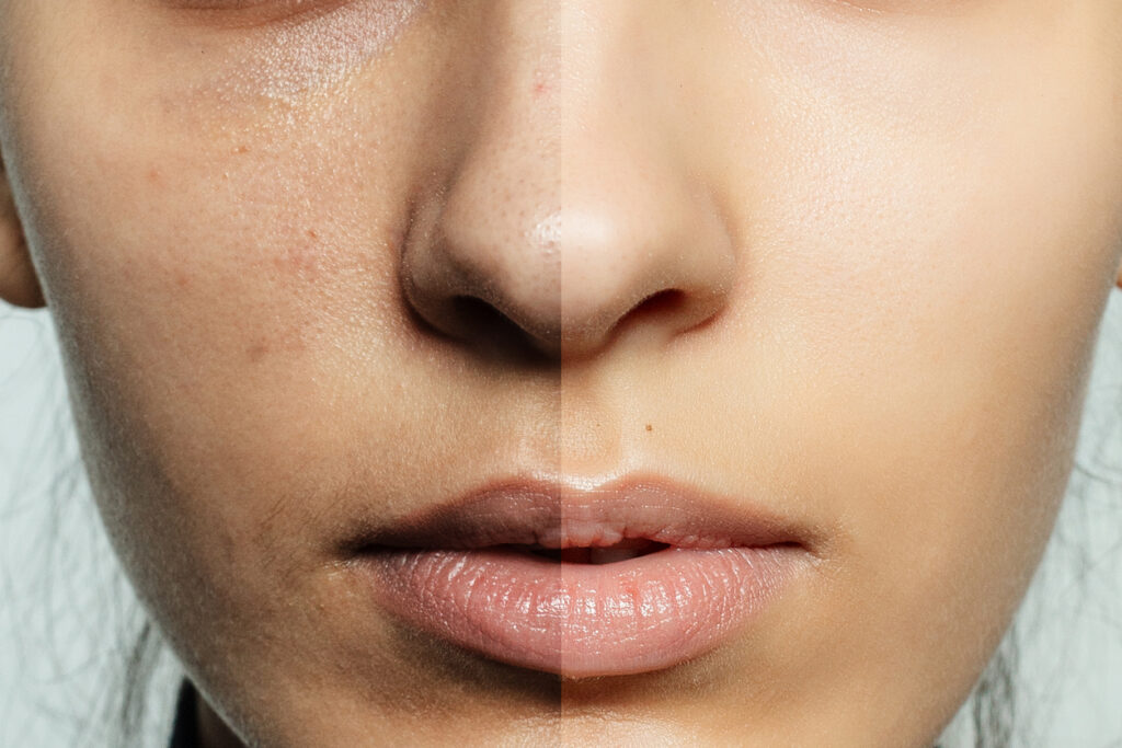 skin treatments for acne, scars, eczema, hyperpigmentation, rosacea, open pores