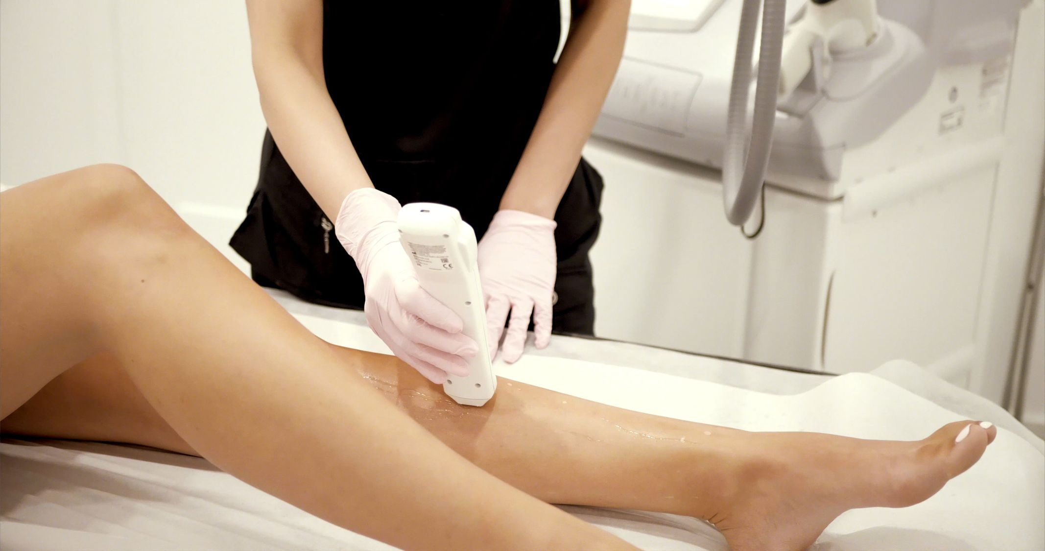 skintel melanin reader before laser hair removal treatment to provide safe and accurate results