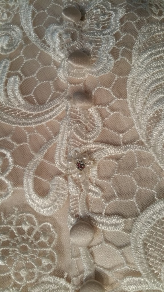 buttons on fitted lace ruffle