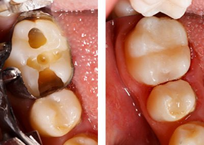 Fillings before and after - SDP dental