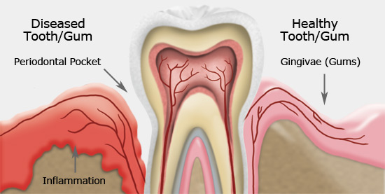 Sandy Dental - gum disease
