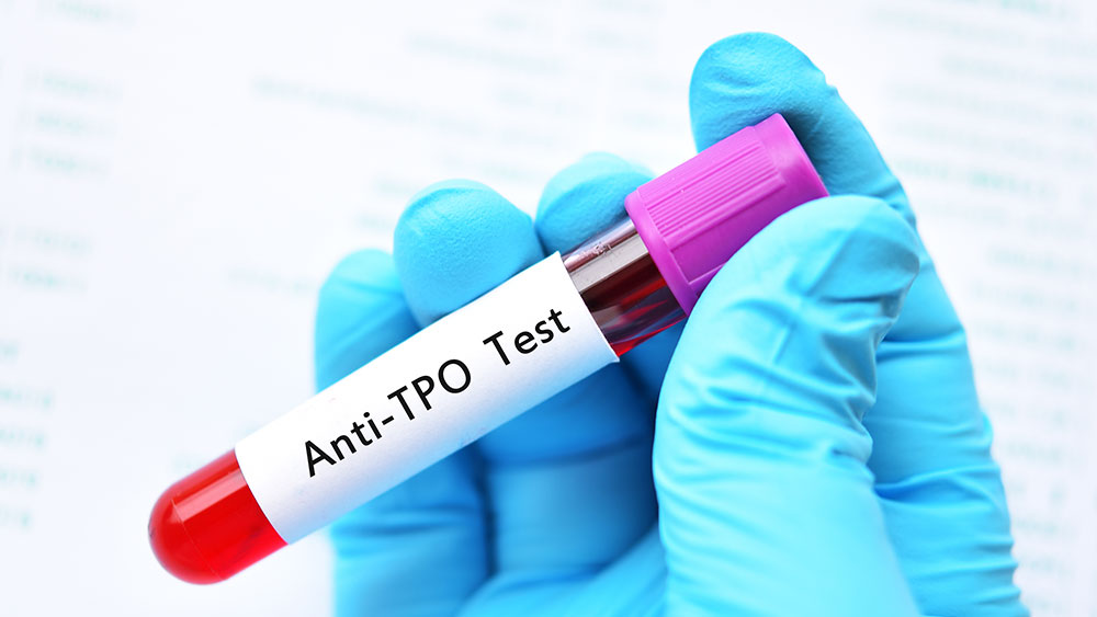 TPO and TGB Thyroid Antibody Testing | Total Health Center VB
