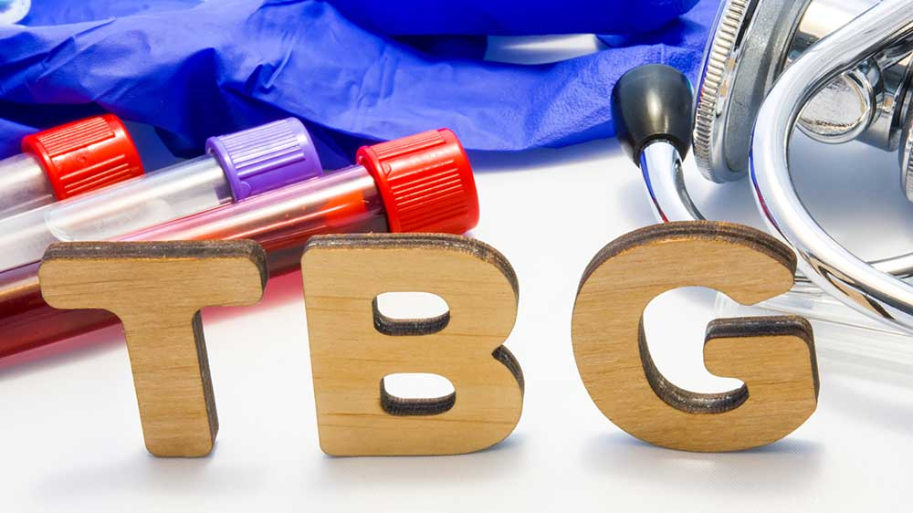 TBG Test Thyroid | Total Health Center VB