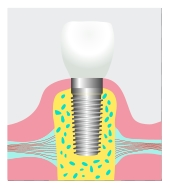 dental implant Irvine