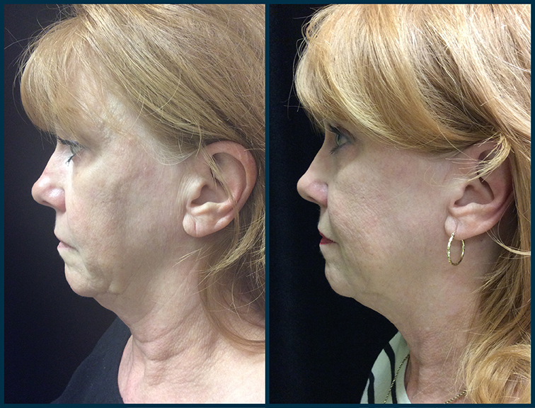 TR_Ultherapy_2mo