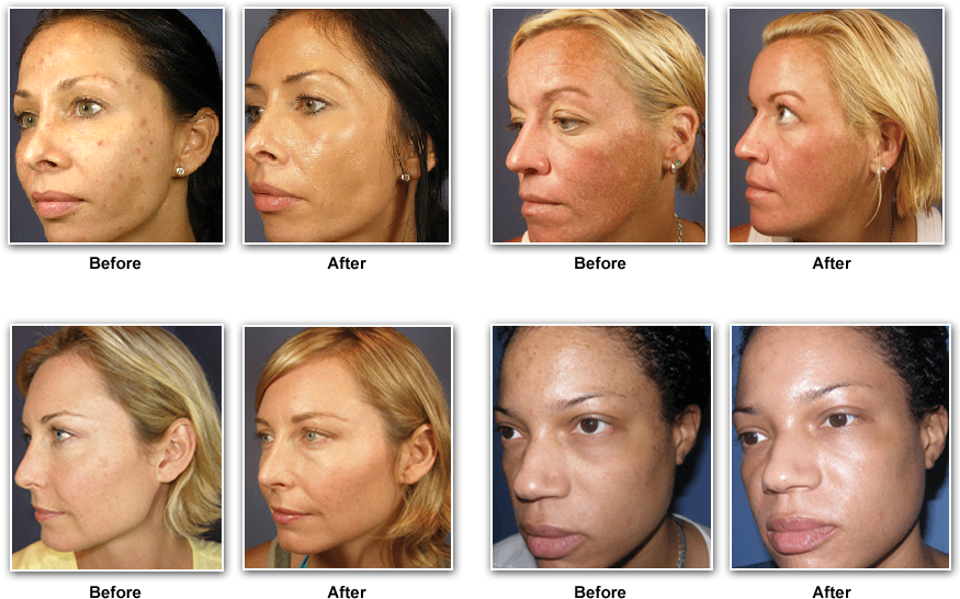 vipeels_before_after1