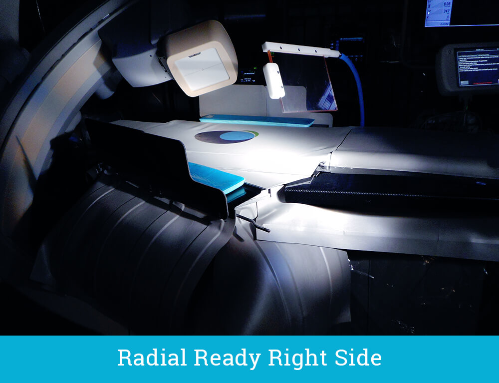 The EGGNEST - Radial Ready Right Side