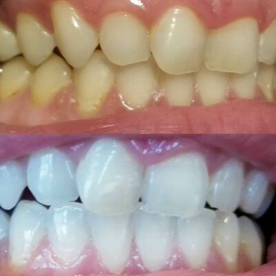 Square Teeth Whitening Before _ After