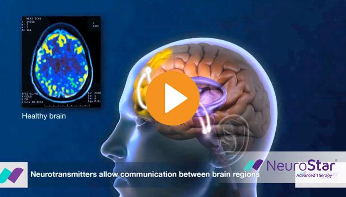 neurostar-mechanism-of-action