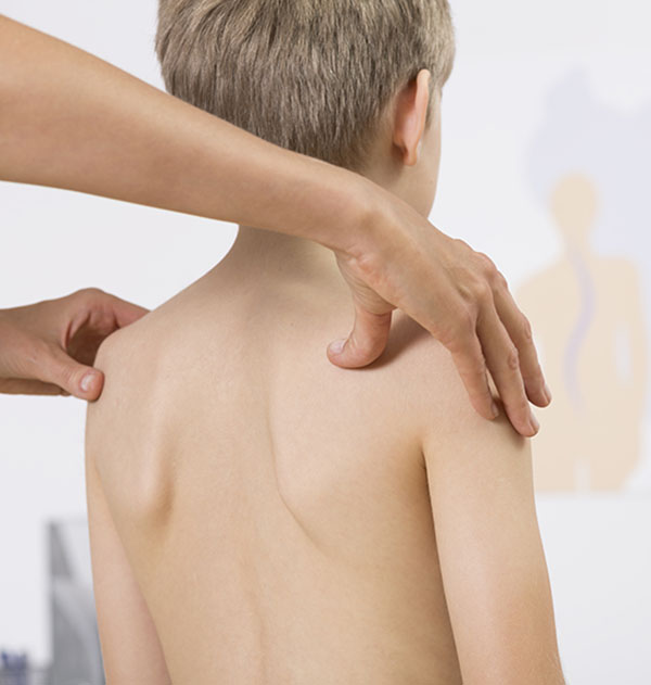 treatment for scoliosis