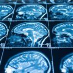 Neuro/Cognitive
