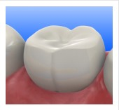 Composite and Tooth Color Fillings, Cosmetic tooth fillings
