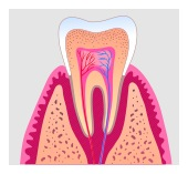 root canal in Lakeway