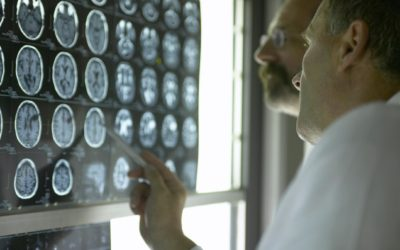 Personal Injury Topics: Traumatic Brain Injury Information