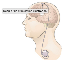 Deep Brain Stimulation illustration