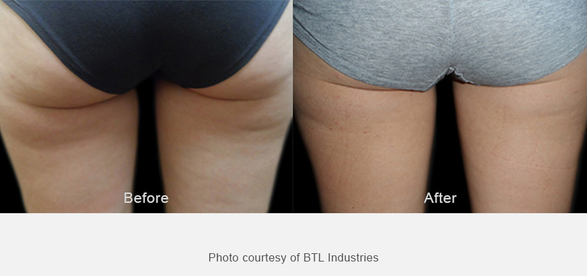 Exilis Ultra 360 before and after results